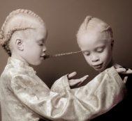 Albino Hastası İkizler Lara ve Mara, Farkındalık Yaratmak İçin Kamera Karşısına Geçtiler